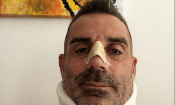 Роналду в дебютном матче за «Ювентус» сломал нос вратарю «Кьево». Пострадавший голкипер поблагодарил легенду