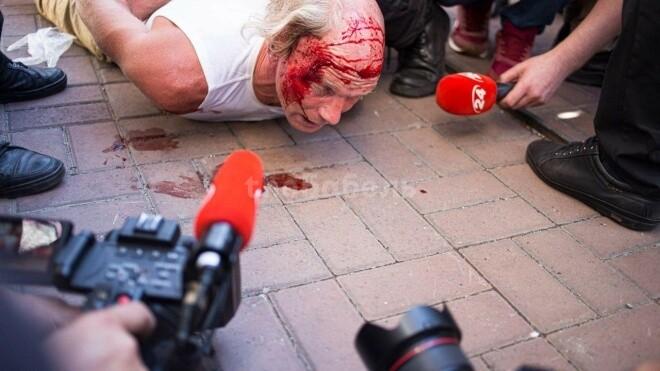 Поліція побила й затримала ветерана, який заліз на огорожу на Майдані