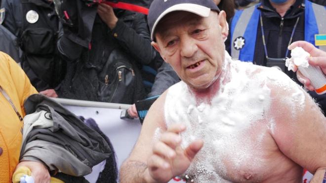 Біля Верховної Ради чоловік себе підпалив — вимагає відставки Авакова