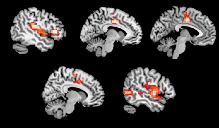 Участки мозга, которые в ходе эксперимента проявили повышенную активность под действием MDMA.