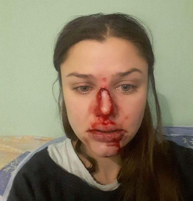 Фото з поста Шевцової. Жінка після побиття, 2016 рік.